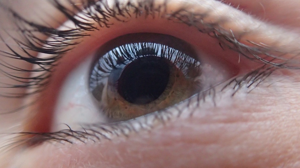 A Few Tips to Slow Down the Onset of Glaucoma
